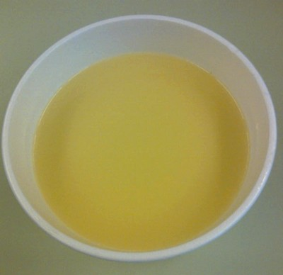 Parmentier soep